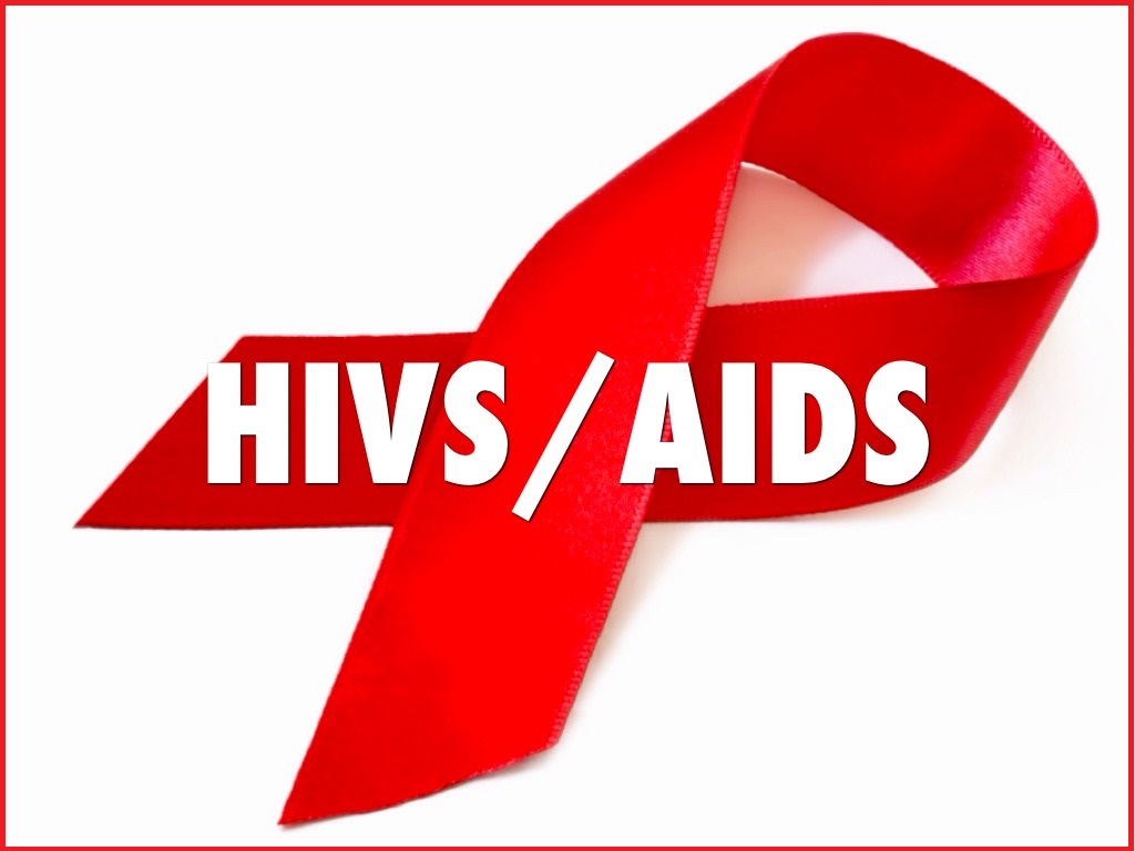 HIV-and-AIDS